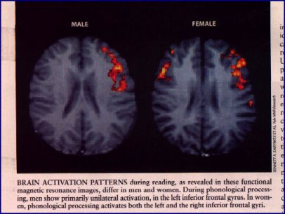 male-and-female-brain
